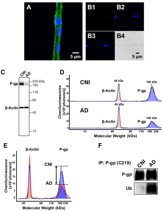 P-Glycoprotein Antibody