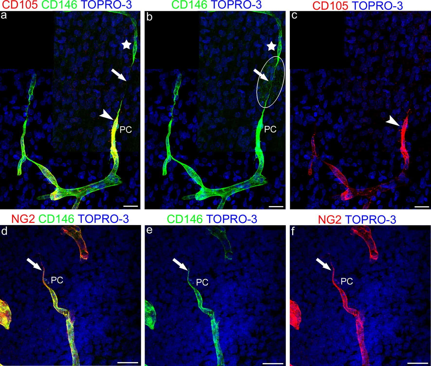 Neural/Glial Antigen 2 (NG2) Antibody in Immunocytochemistry (ICC/IF)