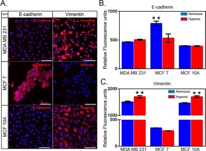 Vimentin Antibody in Immunocytochemistry (ICC/IF)