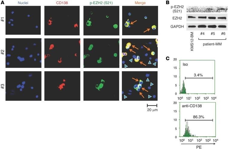 CD138 (Syndecan-1) Antibody in Immunocytochemistry (ICC/IF)