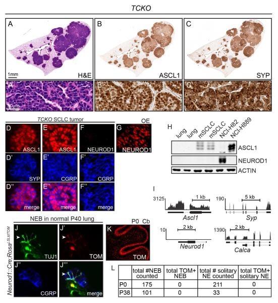 Synaptophysin Antibody