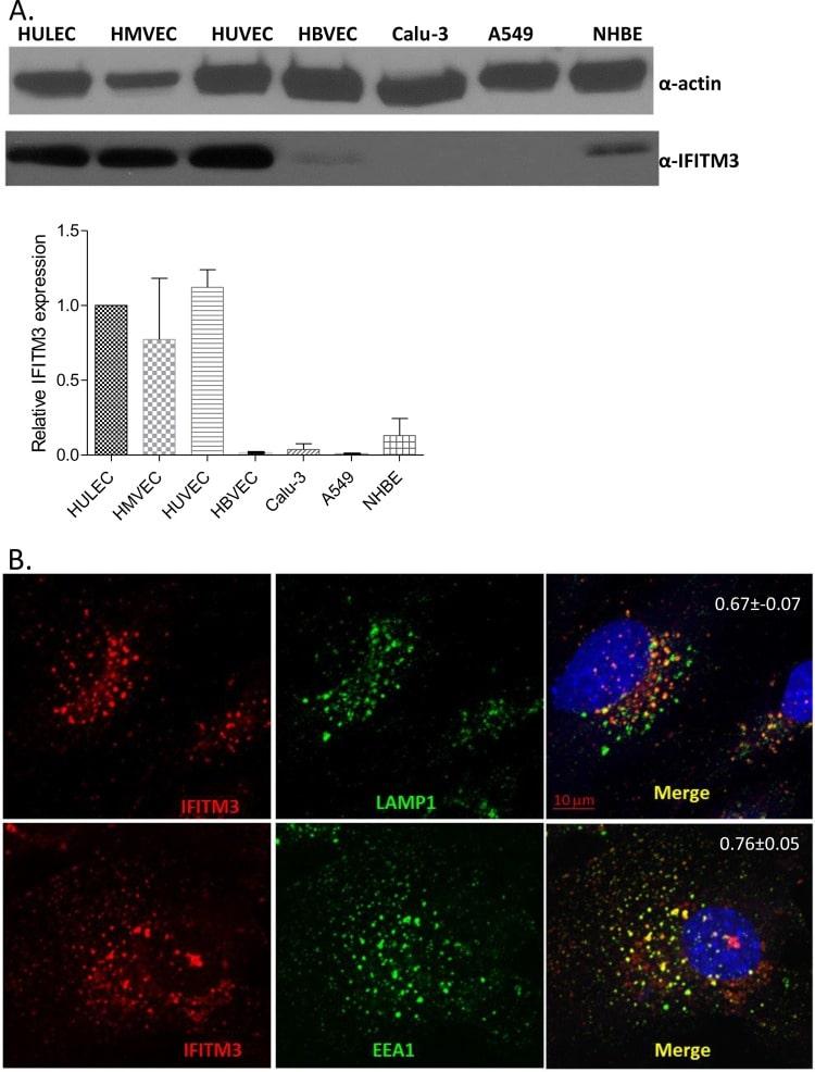 IFITM3 Antibody