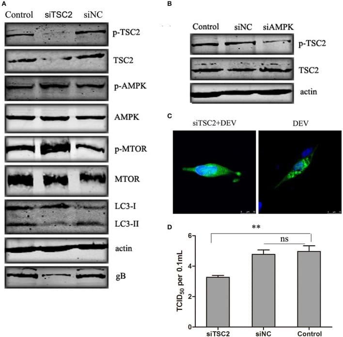 Phospho-AMPK alpha-1,2 (Thr183, Thr172) Antibody