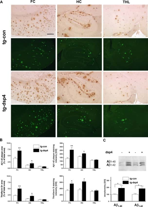 beta Amyloid (1-42) Antibody in Immunohistochemistry (IHC)