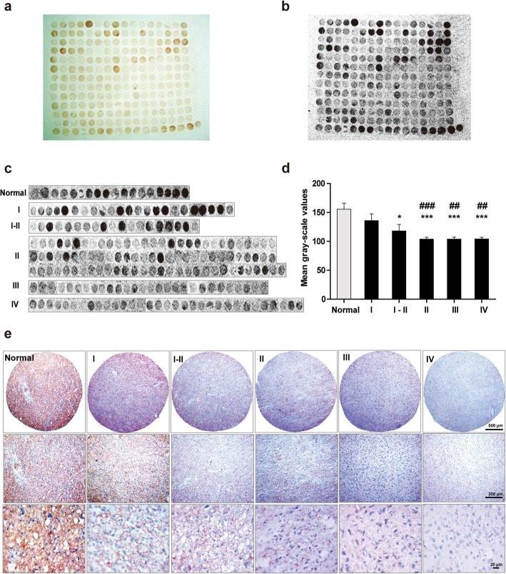 ATP1B2 Antibody in Immunohistochemistry, Peptide array (IHC, ARRAY)