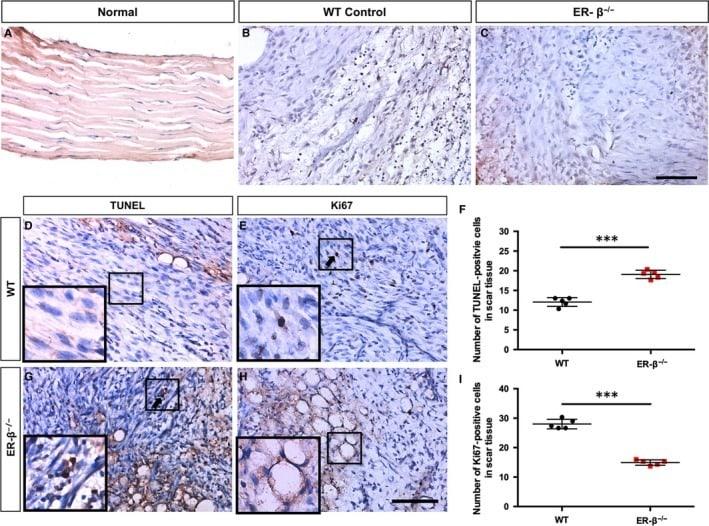 Estrogen Receptor beta Antibody in Immunohistochemistry (IHC)