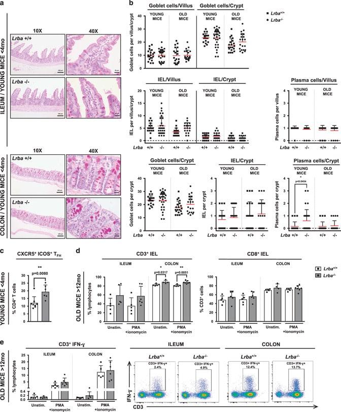 CD8a Antibody