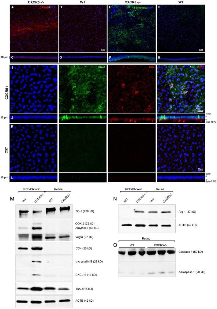 beta Amyloid Antibody in Western Blot, Immunohistochemistry (WB, IHC)