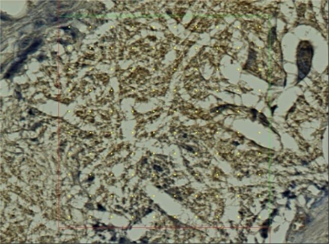 Calprotectin Antibody