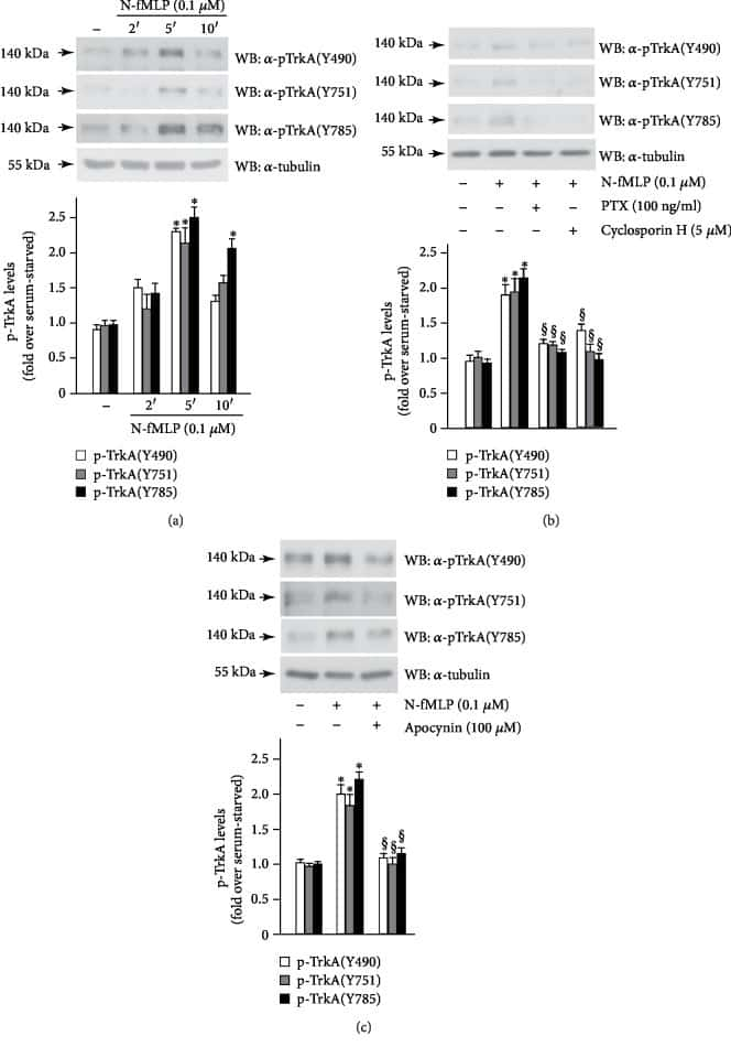 Phospho-TrkA (Tyr751) Antibody