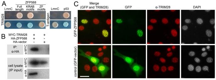 TRIM28 Antibody