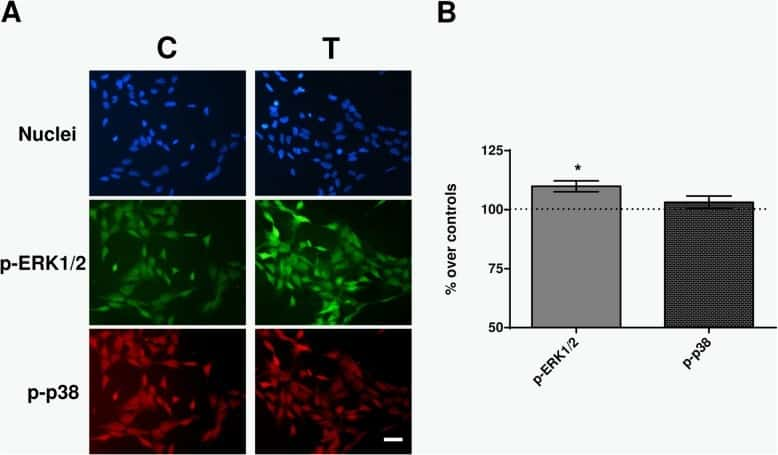 Phospho-ERK1/ERK2 (Thr185, Tyr187) Antibody