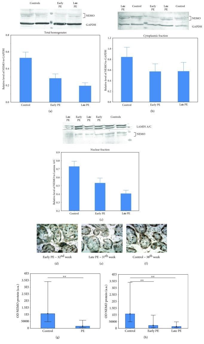 IKK gamma Antibody in Western Blot, Immunohistochemistry (WB, IHC)