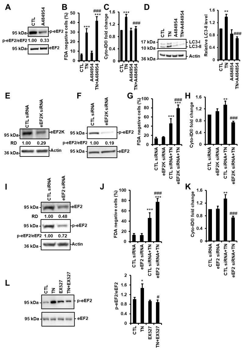 EEF2 Antibody