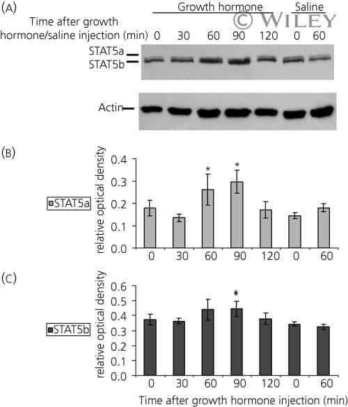 Phospho-STAT5 beta (Tyr694) Antibody