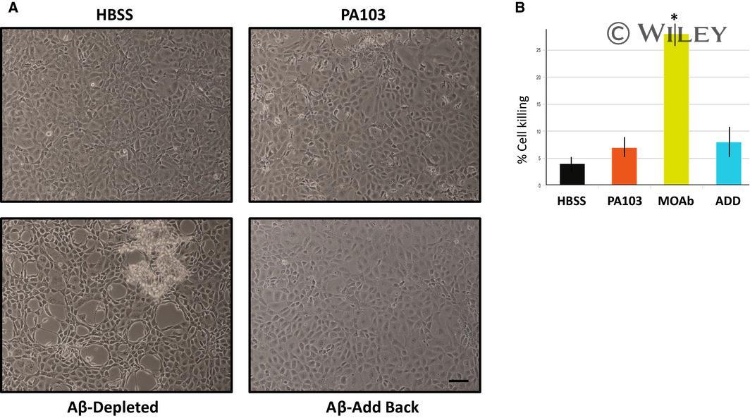 beta Amyloid Antibody in Neutralization (Neu)