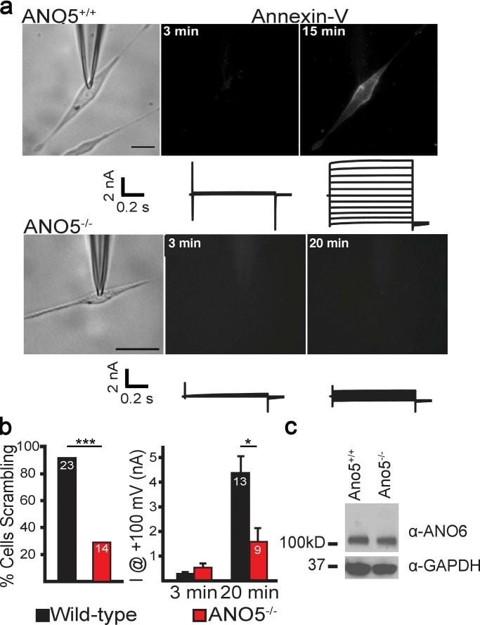 SOCS5 Antibody