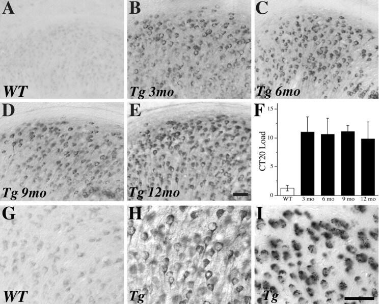 beta Amyloid Antibody in Immunohistochemistry (IHC)