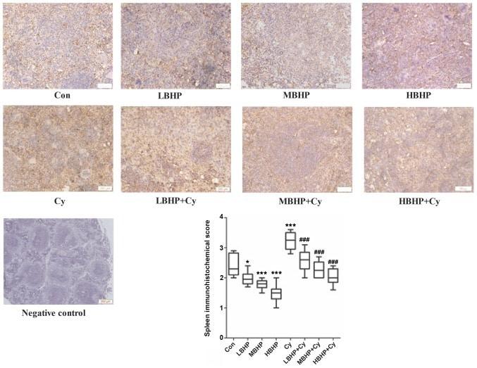 SOCS1 Antibody in Immunohistochemistry (IHC)