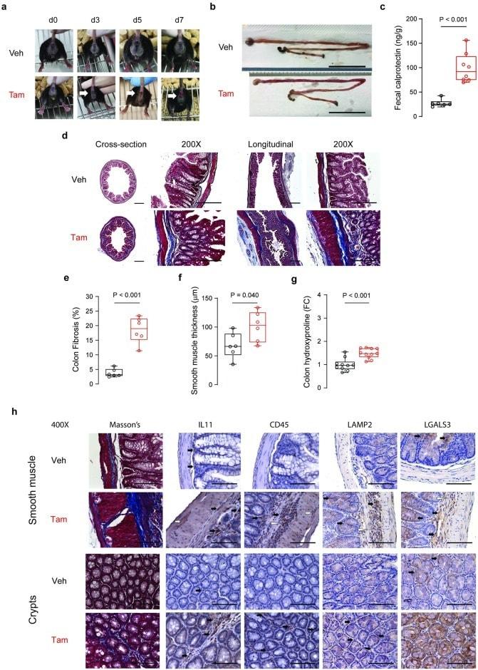 IL-11 Antibody in Immunohistochemistry (IHC)