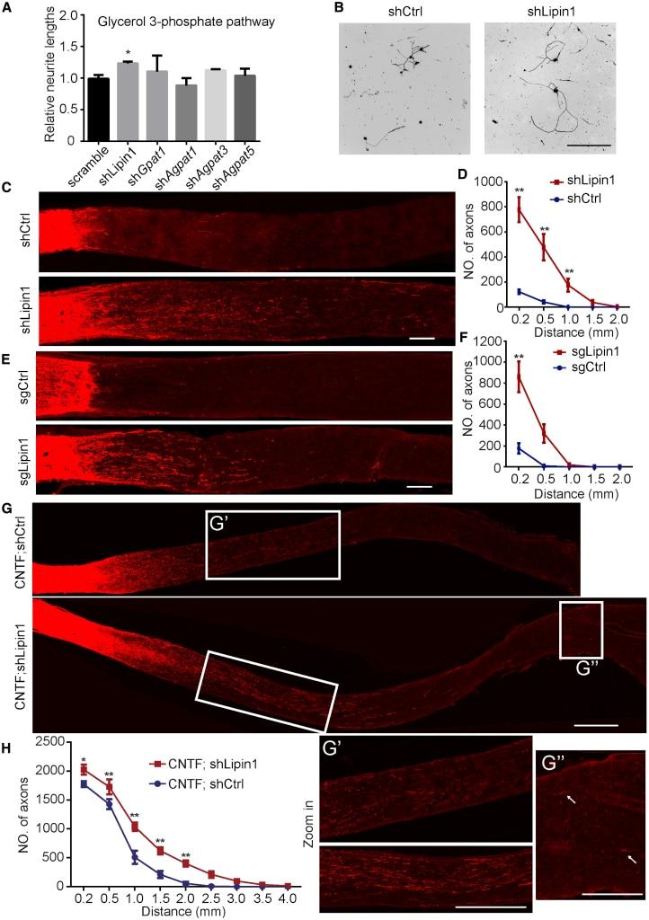 FITC Antibody in Immunohistochemistry (IHC)