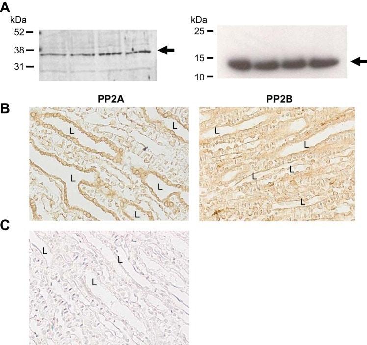 Phospho-Aquaporin 2 (Ser264) Antibody