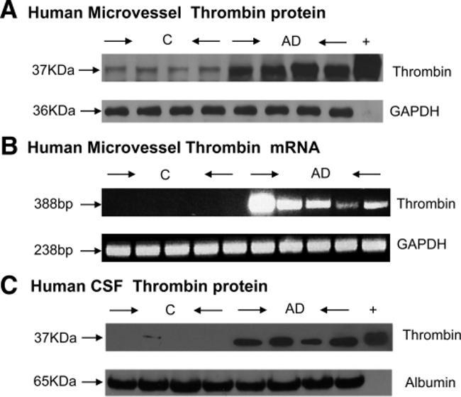 Thrombin Antibody